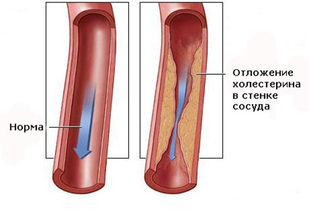 Клетки в атеросклеротических бляшках